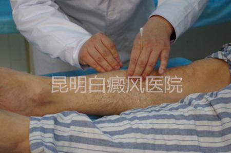 中医论述白癜风的病因
